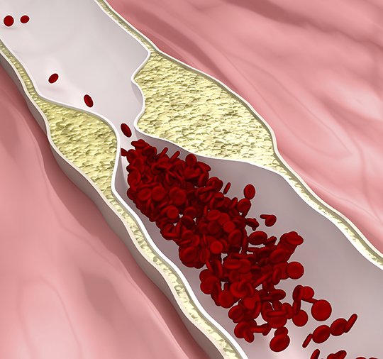 Atherosclerosis disease – plague blocking blood flow
