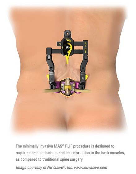 MAS PLIF Surgery Illustration