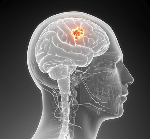 Brain tumor highlighted in brain